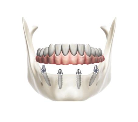 Garda Odontoiatria   Eccellenze