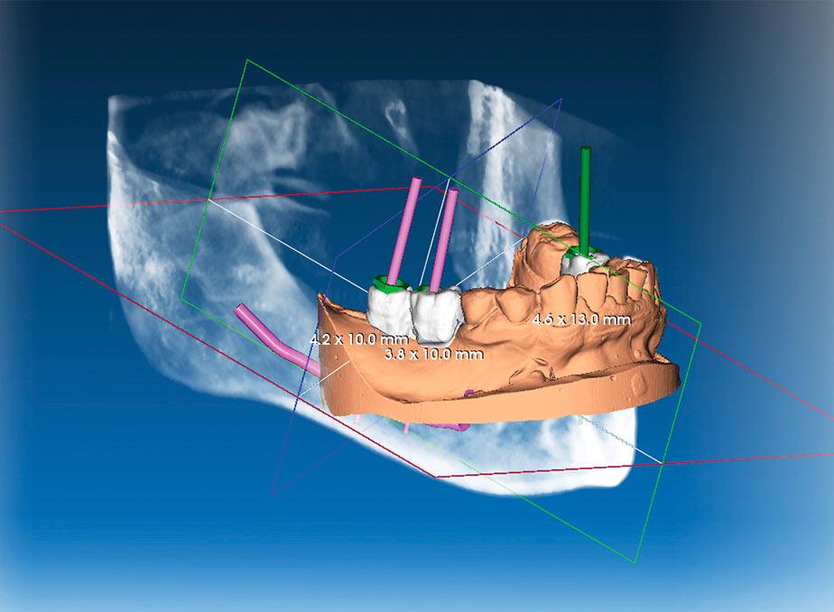 Garda Odontoiatria   Implantologia