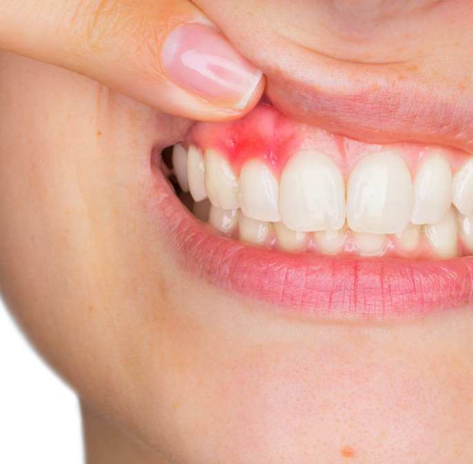 Garda Odontoiatria   Parodontologia