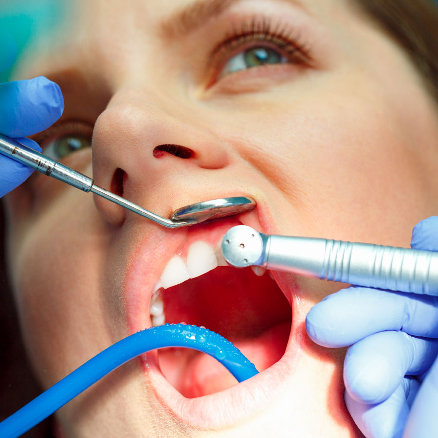 garda-odontoiatria-igiene-profilassi